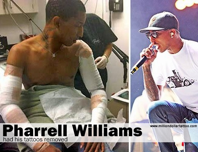 Pharrell had his tattoos removed
