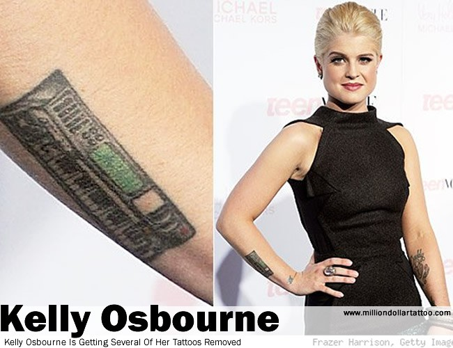 Kelly Osbourne Is Getting Several Of Her Tattoos Removed